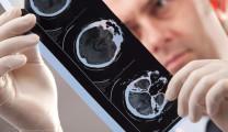 Рязанские ученые изобрели аппарат, который восстанавливает речь после инсульта